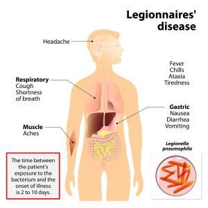 Hot Water Legionella & Your Hot Water Storage Tank